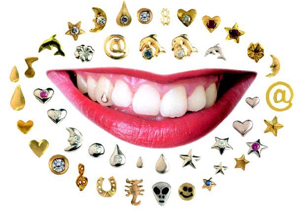виды украшений для зубов